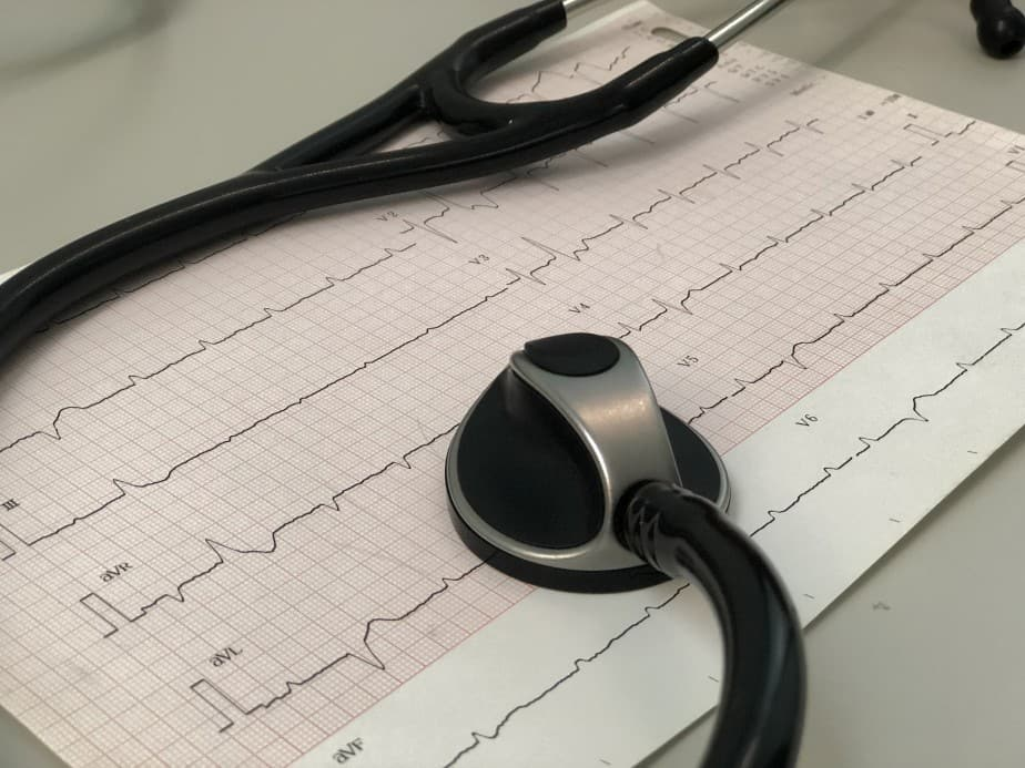 EKG print out and stethescope